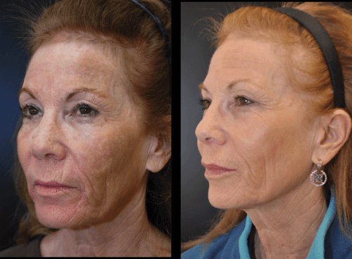 peeling de acido glicolico antes e depois