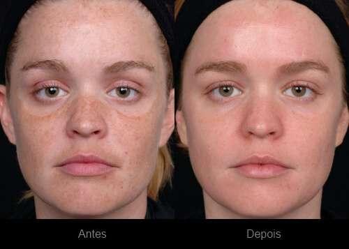 Como Tirar Manchas da Pele – Rosto e Corpo