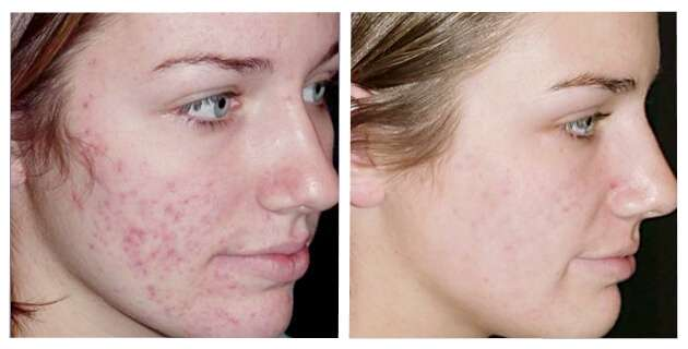 peeling profundo para acne antes e depois