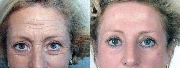 Conheça 8 tratamentos que suavizam as rugas da testa e as marcas de expressão