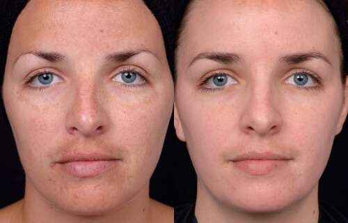 peeling quimico antes e depois 2