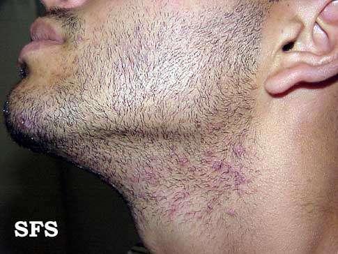 Barba Encravada – Pêlos Encravados, O Que Fazer e Tratamento a Laser