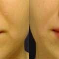 queiloplastia antes e depois