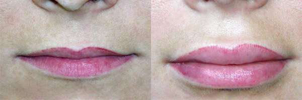 Queiloplastia – Lábios Maiores, Carnudos e Sensuais