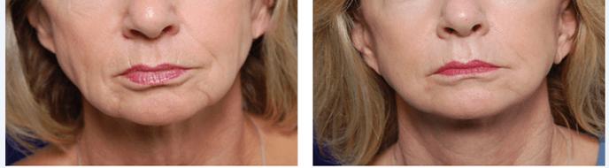 radiofrequencia antes e depois flacidez no pescoço e papada