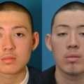 septo nasal antes e depois da cirurgia