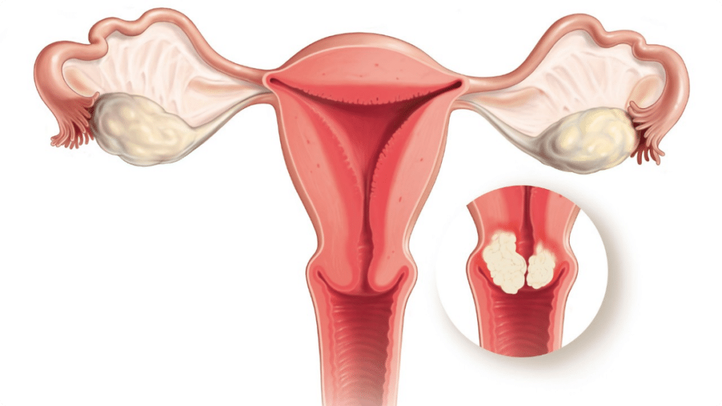 As mulheres com câncer cervical têm uma alimentação deficiente de um certo número de nutrientes, incluindo as vitaminas A, B6 (piridoxina), C, folato (ácido fólico), e selénio.