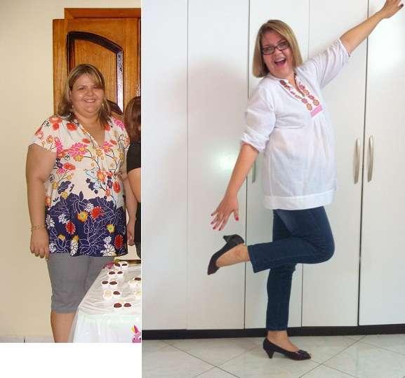 Dieta Pós Balão Intragástrico – Alimentação Antes e Após a Colocação