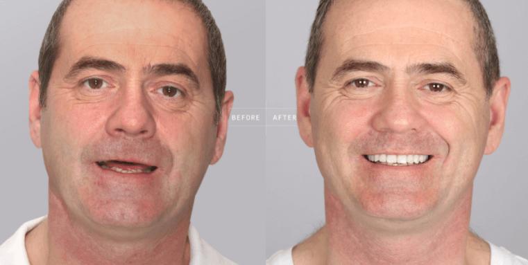 Como realizar a limpeza Correta dos implantes dentários