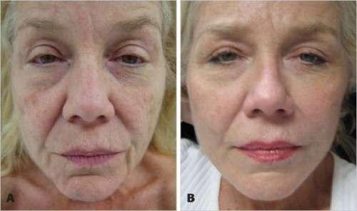 fotos antes e depois do peeling de fenol