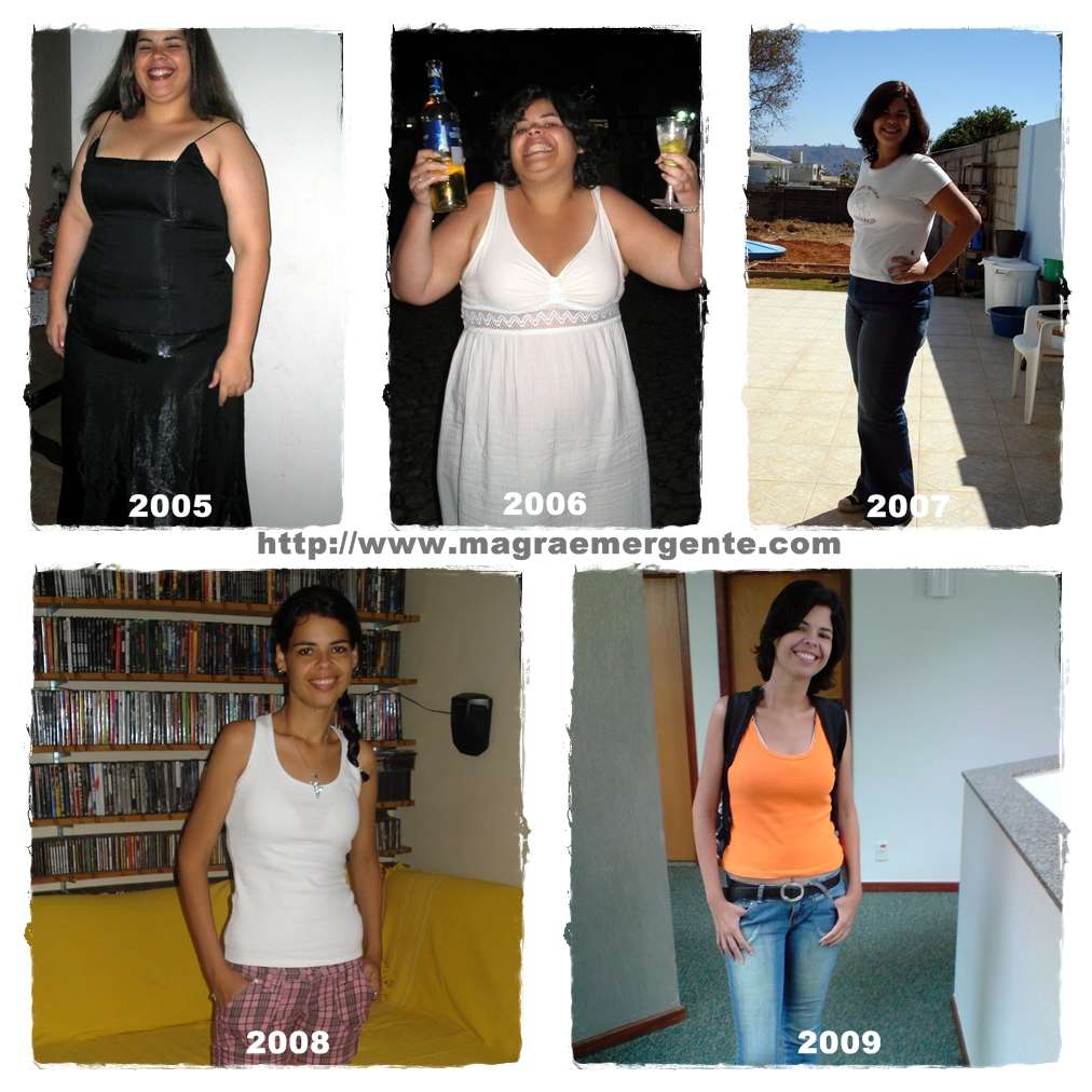 gastroplastia antes e depois