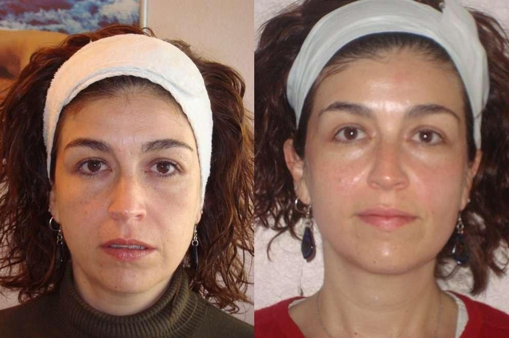 A Radiofrecuencia facial aumenta a produção de colágeno natural