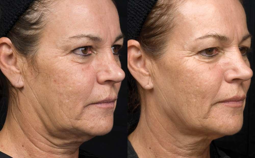 as imagens antes e depois comprovam o excelentes resultados da Radiofrecuencia facial