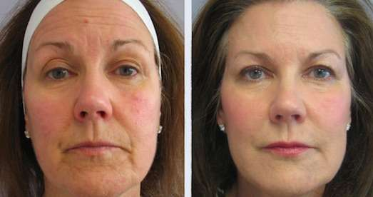 radiofrequência para flacidez no rosto antes e depois