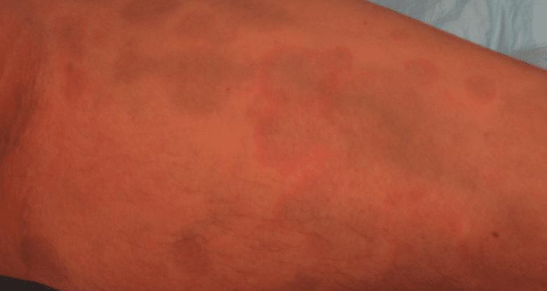 Foto de Dermatose cinzenta