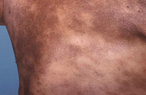 Foto de Dermatose cinzenta, Erythema dyschromicum perstans