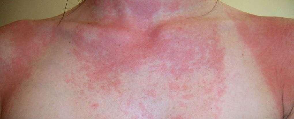 Reação alérgica ao Sol