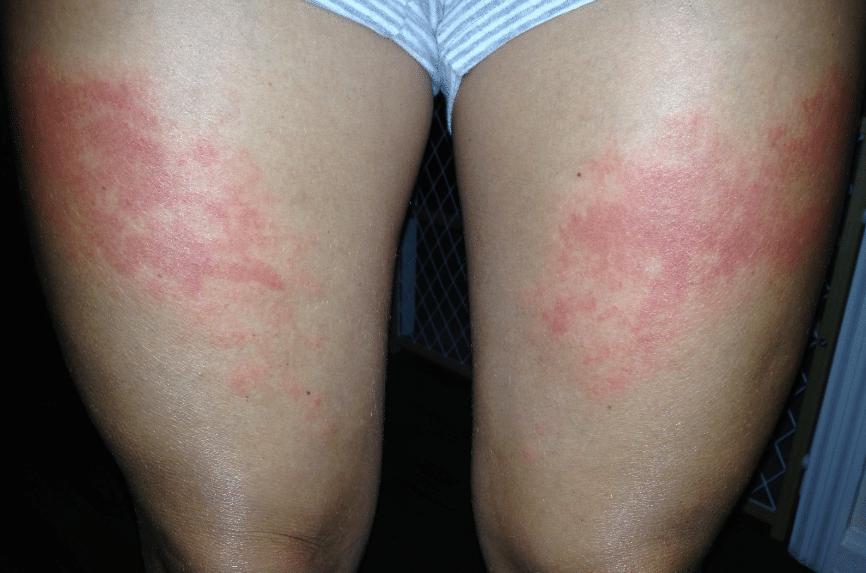 Sintomas de Alergia ao Sol