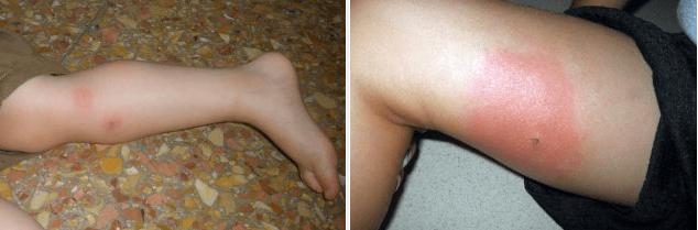 Alergia à Picada de Inseto