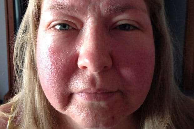 Como Evitar Alergia ao Sol