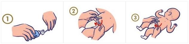 cuidados a ter com o cordão umbilical