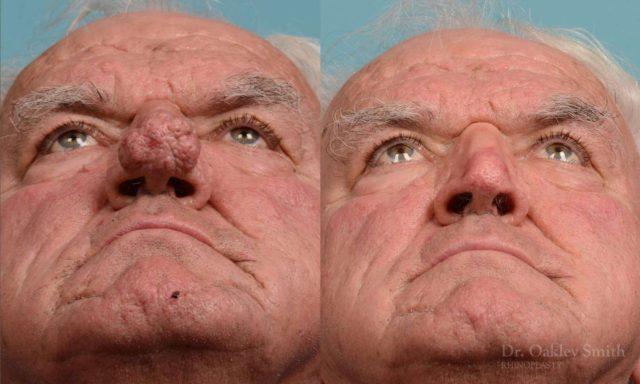 O que é Rinofima: Causas, sintomas, tratamentos e mais
