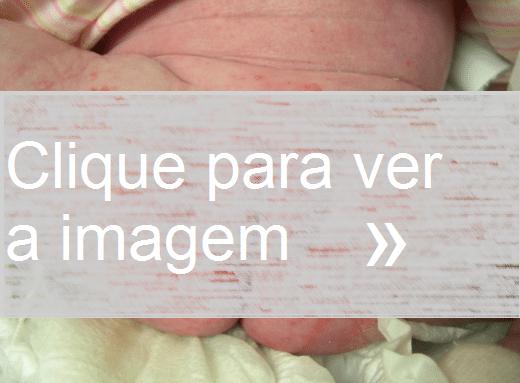 Foto de Candidíase genital em bebê