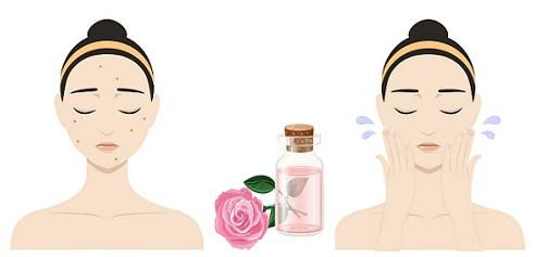 2 Incríveis Formas de Usar o Leite de Rosas para Eliminar as Espinhas