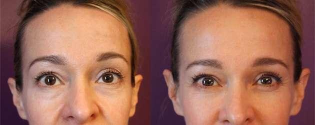 Preenchimento de olheiras com Ácido Hialurônico antes e depois 1