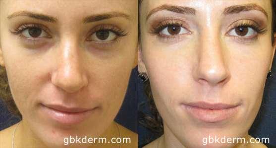 Preenchimento de olheiras com Ácido Hialurônico antes e depois 2