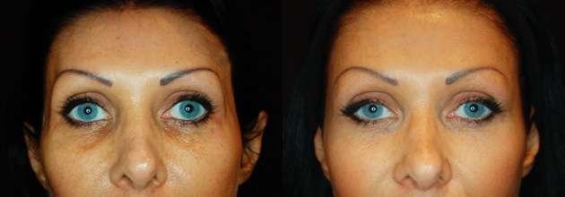 Preenchimento de olheiras com Ácido Hialurônico antes e depois