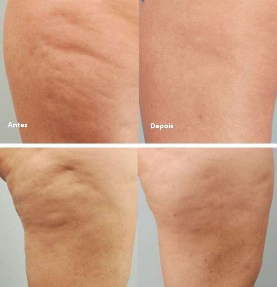 celulite antes e depois