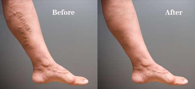 cirurgias de varizes antes e depois 5
