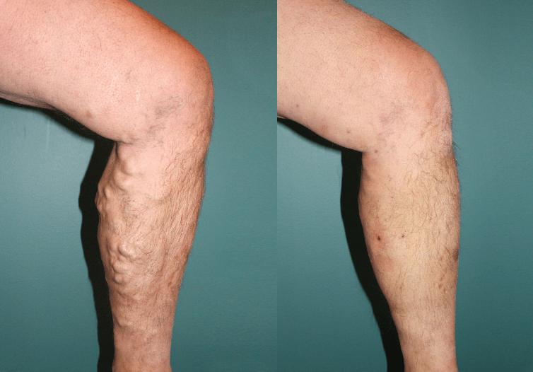 cirurgias de varizes antes e depois 6