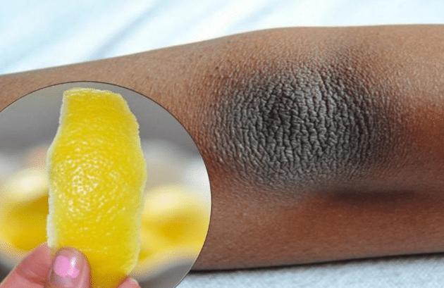 Como Clarear Cotovelos Escuros