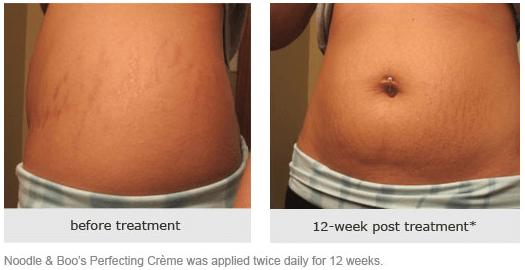 estrias antes e depois da gravidez