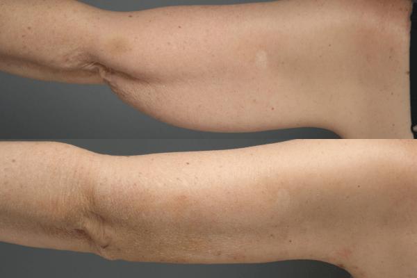 flacidez nos braços antes e depois da radiofrequência accent