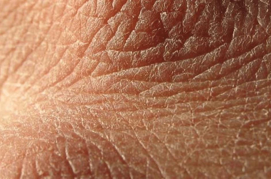 Hidratante caseiro para pele seca e extra seca (côco ralado e aveia)