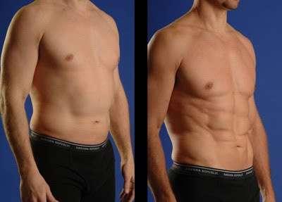 foto de Lipoaspiração de Alta Definição antes e depois