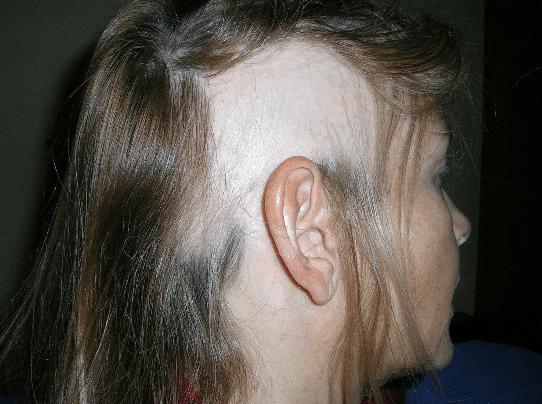 foto de mulher com queda de cabelo
