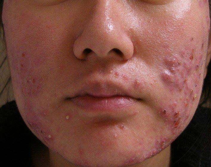 o que são espinhas acne