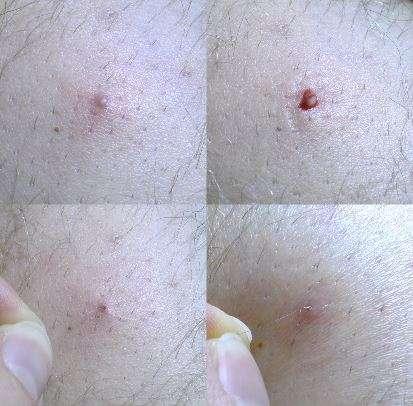Pelos encravados podem causar foliculite, cistos, e até necessidade de cirurgia
