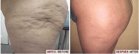 Tratamento Definitivo para Celulite