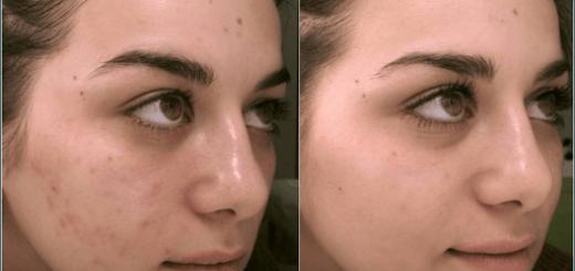 Ácido kójico antes e depois