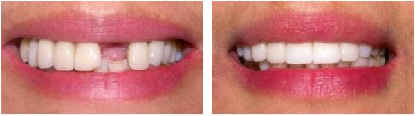 Implantes Dentários Low cost baixam a qualidade dos materiais utilizados