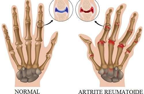 Tipos de Artrite – Osteoartrite, reumatóide, infecciosa, psoriática, gotosa e idiopática