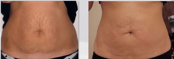 biodermogenese em estrias antes e depois 2