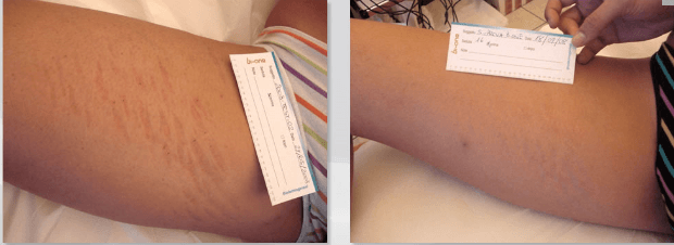 biodermogenese em estrias antes e depois 4