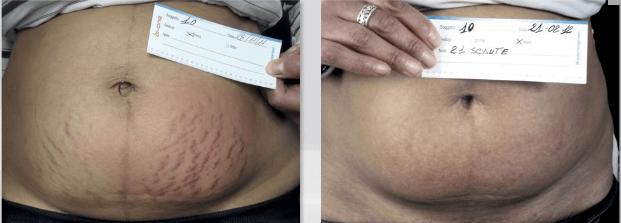 biodermogenese em estrias antes e depois 5