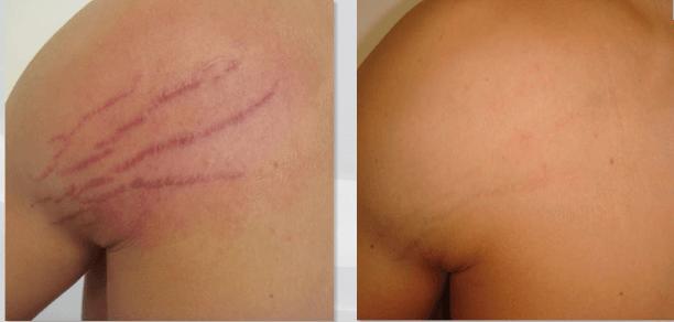 biodermogenese em estrias antes e depois